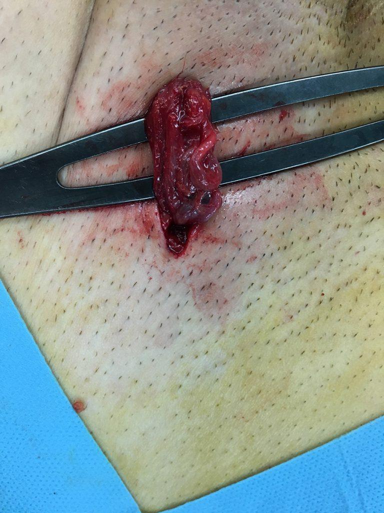 αποκατάσταση κιρσοκήλης: Η υποβουβωνική τομή, περίπου 2 εκ.